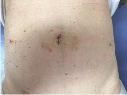 手術後1週間の腹部の画像
