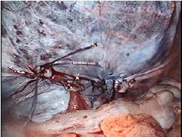 腹膜を縫合した手術終了図