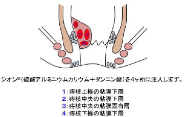 ALTA療法のイラスト