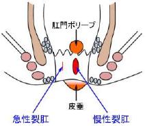 裂肛(きれ痔)のイラスト
